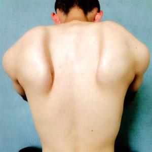肩 甲骨 りっこう 肩甲骨の左に痛み、、、なんで左だけなんだろう。なるほどの理由
